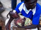 Young girl injured in aerial bombing in Southern Kordofan